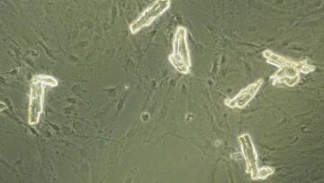 Staminali: le super-cellule per rigenerare il cuore