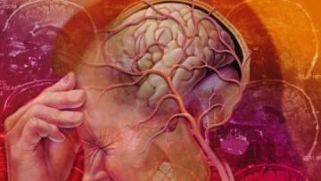 Identificati 4 nuovi geni causa dell'emicrania