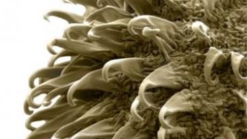 Nanoburrs: la nanotecnologia per curare le arterie danneggiate