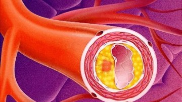 Le cause dell'arteriosclerosi si studiano in 3D
