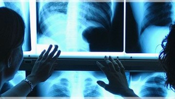 Cardiologi ai raggi X